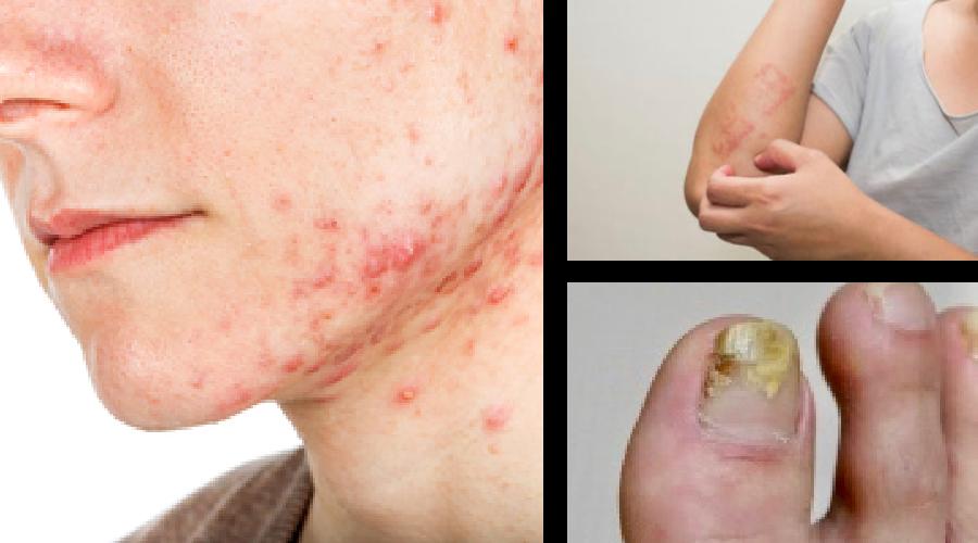 アトピー性皮膚炎、脂漏性皮膚炎、水虫、ニキビ肌、荒肌…にも…