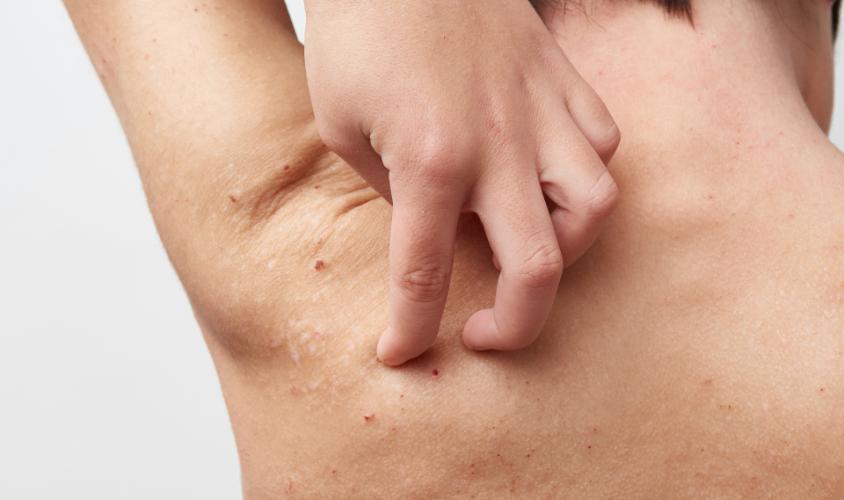アトピー性皮膚炎、脂漏性皮膚炎、水虫、ニキビ肌、荒肌…にも
