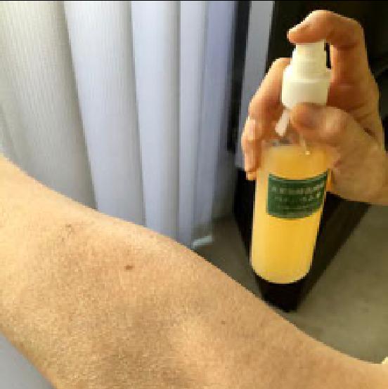 患部にスプレー塗布してください。3~4回/日。塗布回数が多いほど、早く改善効果が現れます。