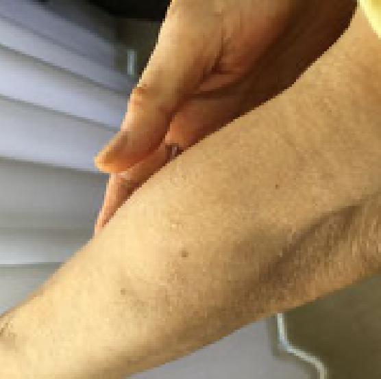 患部にスプレー塗布後、肌に軽く擦りこんでください。できれば、日を空けないで集中的に連日塗布が望ましいです。